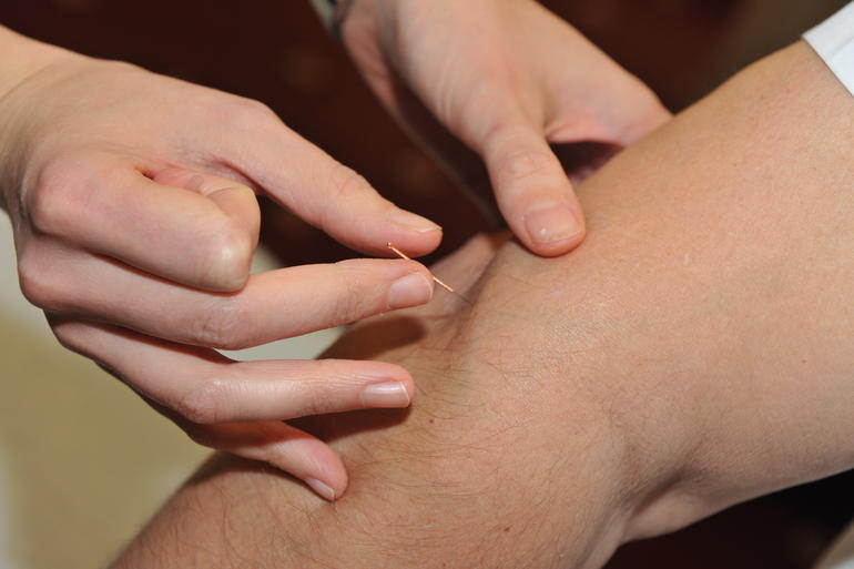 Chiropractic needle therapy relieving elbow pain